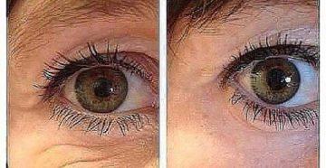 Процедура по избавлению полос под глазами