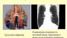 Буллезная эмфизема легких. 3 операции