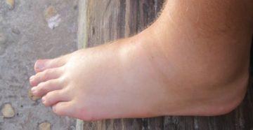 Отёк ног у пожилой женщины
