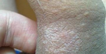 На пенисе белый налёт