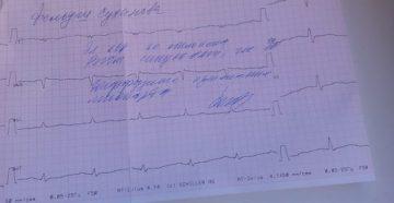 Мерцательная аритмия этацизин и предуктал