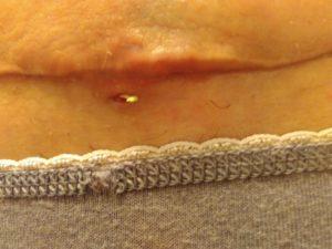Рецидив трещины через год после операции