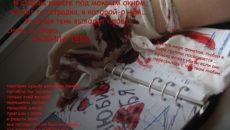 Суицид вены вскрытие. Жить не хочу