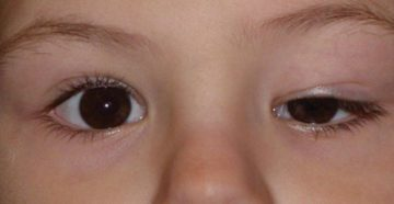 У меня с рождения один глаз больше другова?