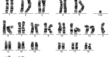 47 хромосом и маркерная