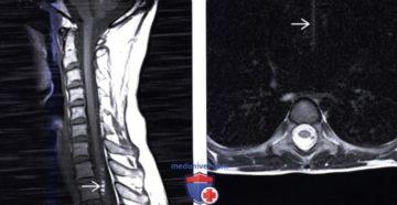 Белые пятна в позвонках на МРТ