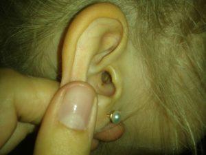 Внутри уха дырка