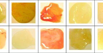 Зелёная мокрота, нужен ли антибиотик?