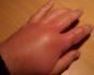 Отек после занозы и раны