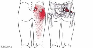 Болит нога под ягодицей
