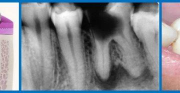 Удалили семёрку, при надавливании болит соседний зуб